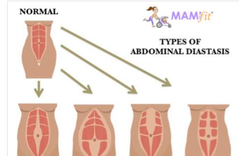 diastasis-abdominal-mamifit-soy-mama-natura